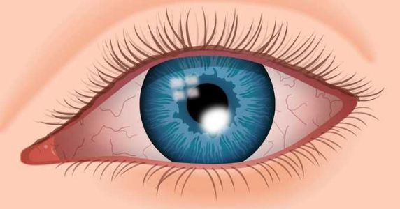 What is a corneal ulcer?
