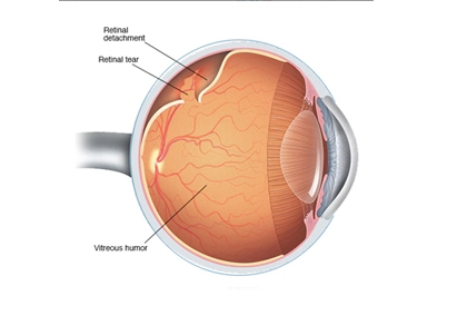 Retina-Vitreous