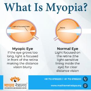 MYOPIA AN EPIDEMIC !!