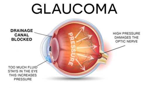 Do You Recognize the Early Warning Signs of Glaucoma?